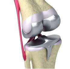 Illustration of a traditional knee implant